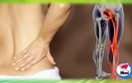 El nervio ciático es el más largo del cuerpo y no solo se inflama por exceso de estrés