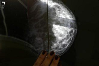 El cáncer de mama es el mas letal, se ha duplicado en mujeres, tabaquismo la principal causa