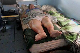 María del Pilar Espíndola, sufre flebitis y debe estar acostada la mayor parte del tiempo.