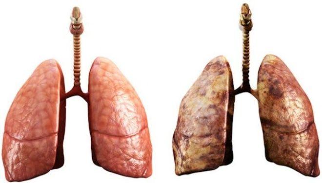 Cada año se diagnostícan 10 mil casos de cáncer con el tabaquismo como la principal causa de la enfermedad, pulmón sano y pulmón de un fumador