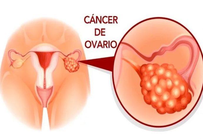 Se puede detectar cancer con un analisis de sangre
